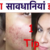 Best tips to remove pimples permanently